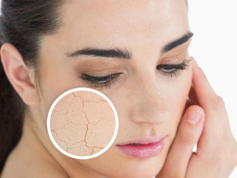 Cách làm đẹp da sau khi sinh khi con da bị khô